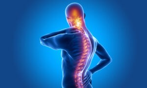 Homeopathy Treatment of Ankylosing Spondylitis Online-Homeopathy Medicine for Ankylosing Spondylitis