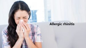 Homeopathy Treatment of Allergic Rhinitis Online-Homeopathy Medicine for Allergic Rhinitis