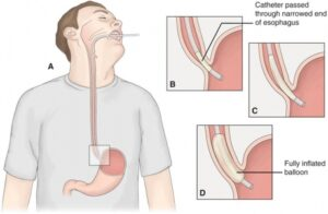 Homeopathic Treatment of Achalasia Cardia online