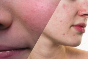 Homeopathic Treatment of acne rosacea  online.
