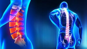 Homeopathy Treatment of Back Pain Online-Homeopathy Medicine for Back Pain