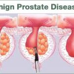 Homeopathy Treatment of Benign Enlargement Of Prostate  Online-Homeopathy Medicine for Benign Enlargement Of Prostate